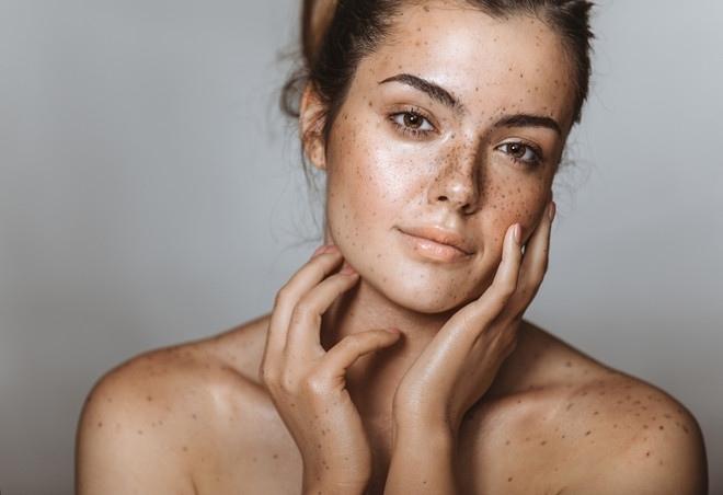 ошибки ухода за сухой кожей, изображение №3