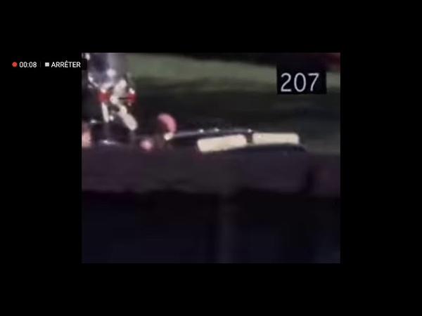 JFK tué par son chauffeur 280 à 320 on voit le chauffeurs armé tirer au visage. Jacqueline sortir
