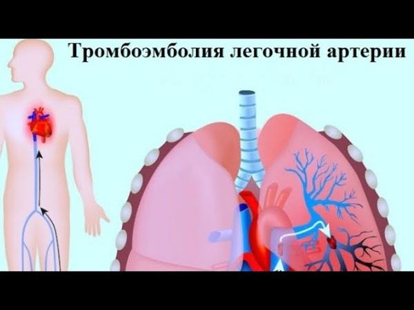 Опасное заболевание тромбоэмболия легочной артерии Причины и симптомы
