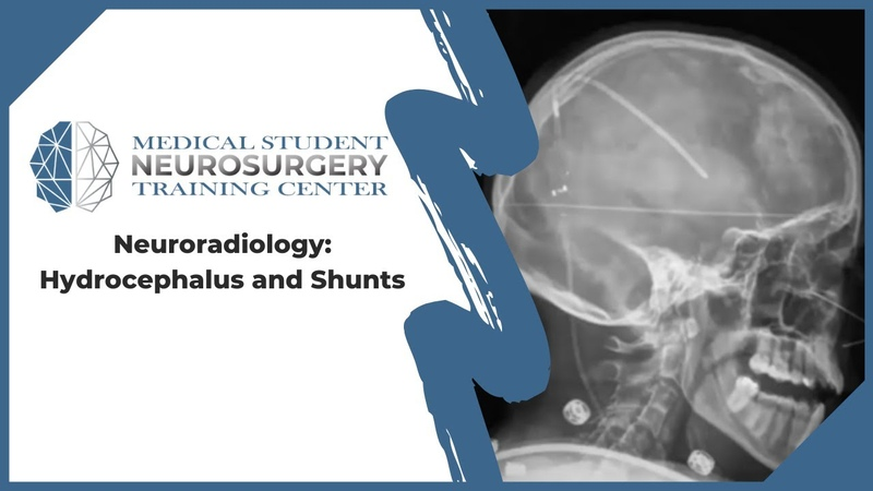 Neuroradiology Hydrocephalus and Shunts