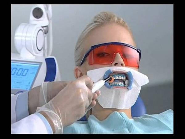 Система отбеливания зубов Beyond видео-инструкция