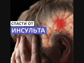 Инсультные центры в Москве